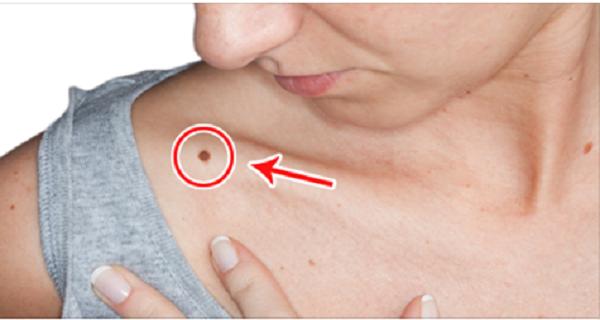 symtom på levercancer